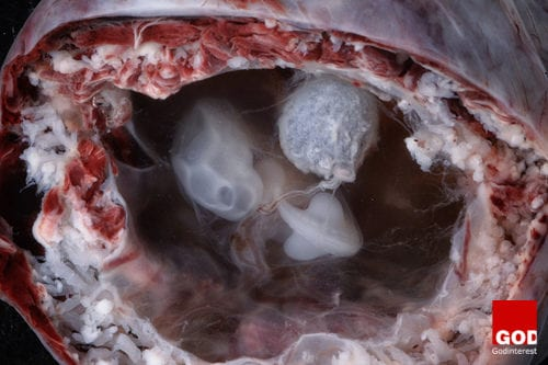 Stunning Photos of Babies in Womb Expose Pro-Abortionists lie About Human Development, Godinterest Christian Magazine