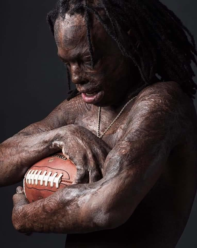 Taquarius Wair – My Physical Disability Doesn't Hold Me Back